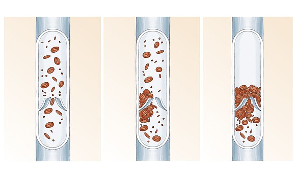 Thrombose veineuse profonde - Thrombose veineuse profonde