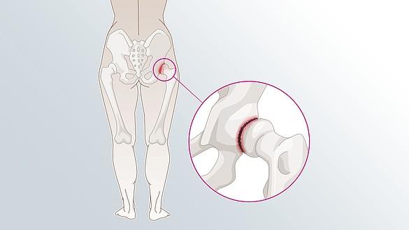 Douleur articulaire - Douleur articulaire