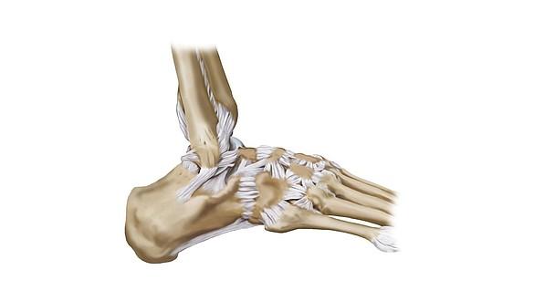 Lésion ligamentaire - Lésion ligamentaire