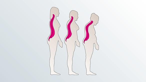 Ostéoporose - Ostéoporose