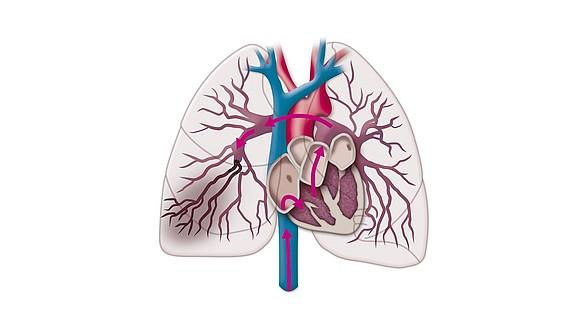 Embolie pulmonaire - Embolie pulmonaire