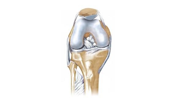 Rupture du ligament croisé